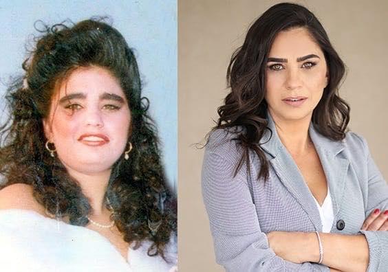 חלי ממן - לפני ואחרי
